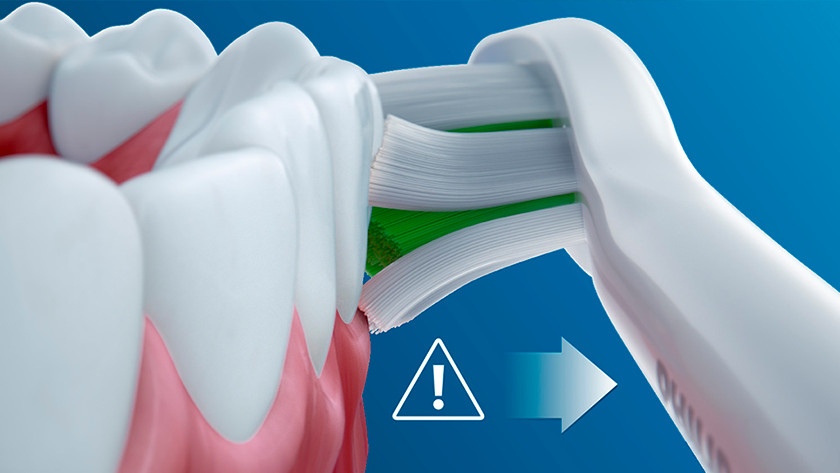 Zachte reiniging voor gevoelig tandvlees